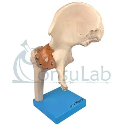 Articulação do Quadril com Ligamentos