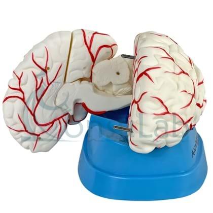 Cérebro com Artérias em 8 Partes