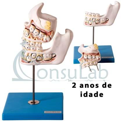 Desenvolvimento da Dentição 4 Peças