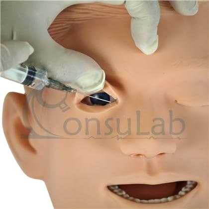 Modelo de Irrigação Lacrimal
