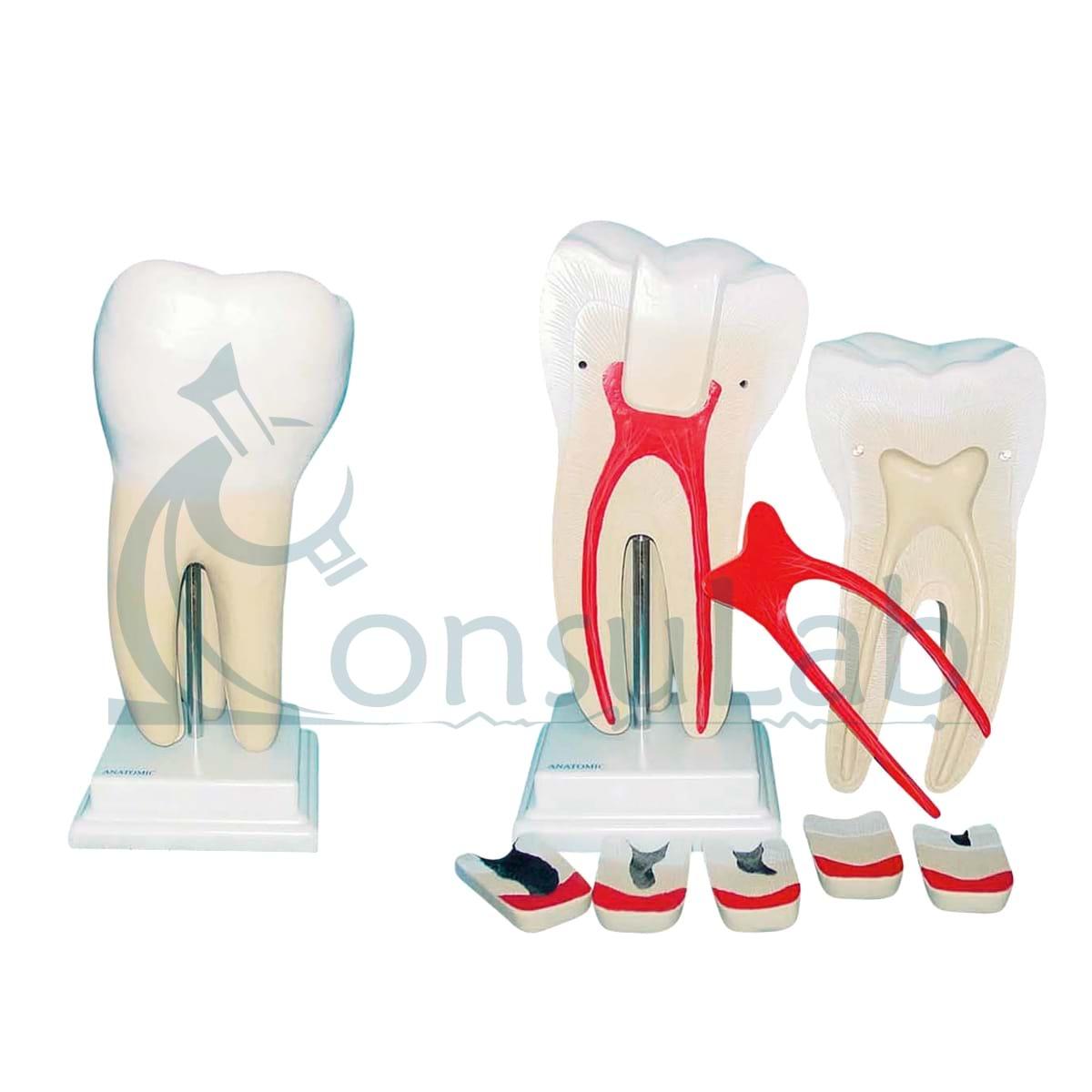 Dente Molar Ampliado com Evolução da Cárie em 8 Partes