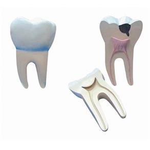 Dente Molar Ampliado - Saudável e com Cáries