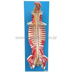 Sistema de Medula Espinhal em seu Canal